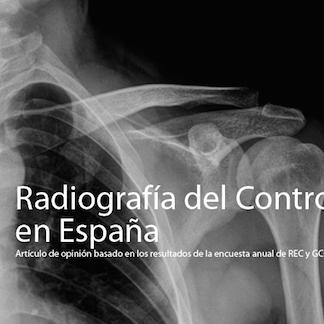 Radiografía del Controller en España (I)